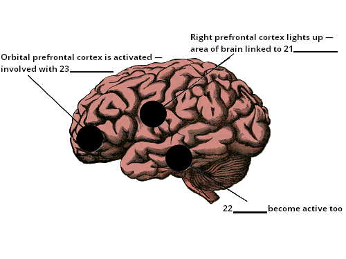 brain sideview diagram 2